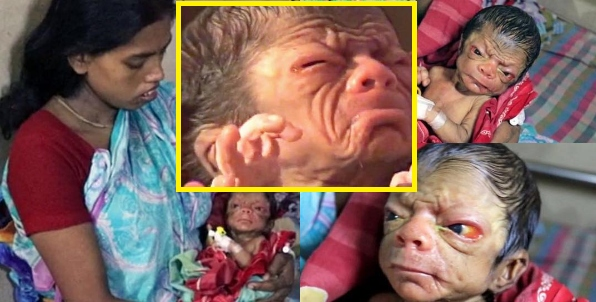 Watch the strange baby  – A baby boy from Bangladesh was born with a rare genetic disorder that causes looks like a man.