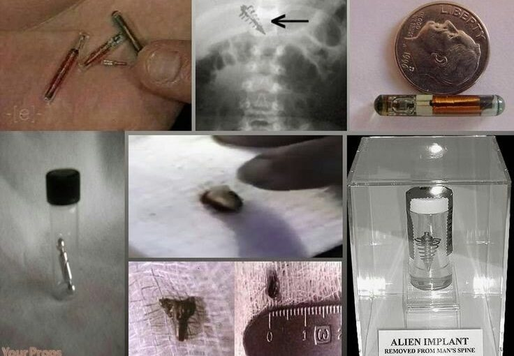 """Alien object embedded in spinal column Mystery Object Removed in Two Hour Procedure Doctors Baffled; """"We Have No Idea What this is."""""""